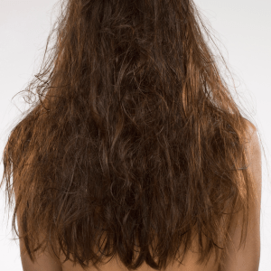 Dry and Frizzy Hair